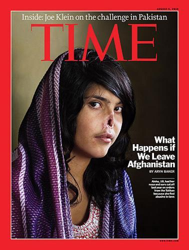 ragazza mutilata Time talebani