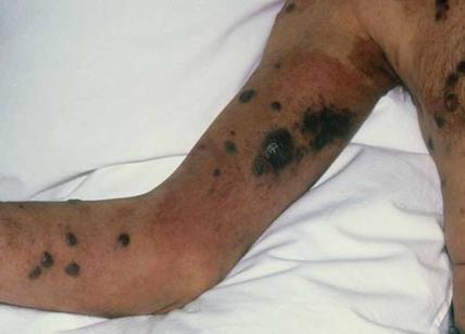 Hiv scomparso da sangue del malato grazie a cura sperimentale