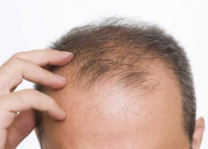 cura per alopecia