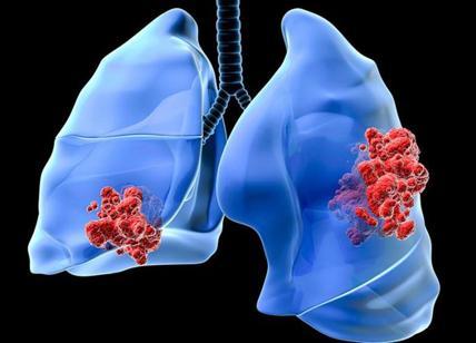 Tumore polmone: le ultime novità sulla cura del tumore al polmone