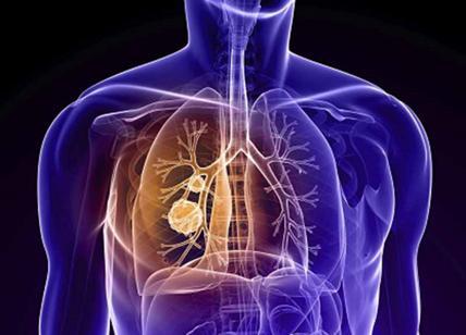 tumore ai polmoni sintomi iniziali