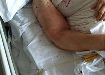 Formiche E Nidi Di Blatte Invasione Negli Ospedali Da Nord A Sud
