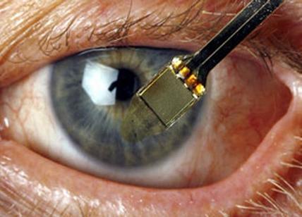 Retina artificiale impiantata per la prima volta in Italia
