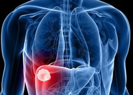 Tumore al fegato, via alle sperimentazioni del vaccino sull'uomo