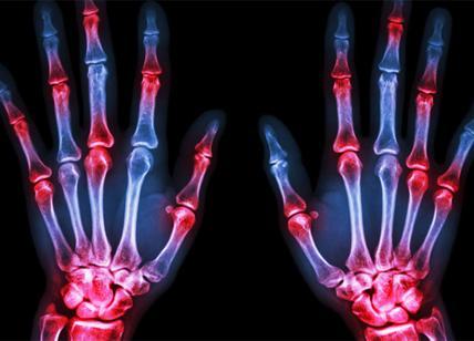 Artrite reumatoide a Pisa