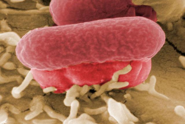 Batterio mangiacarne uccide un bambino in America